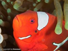 Stachelanemonenfisch